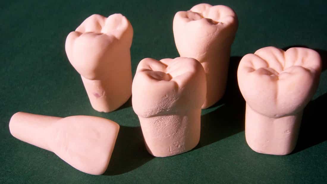 Artikelbild Zahnkunst