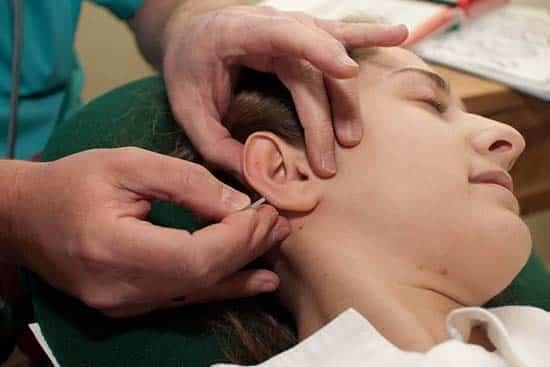 Ganzheitliche Zahnmedizin Akupunktur Nadeln